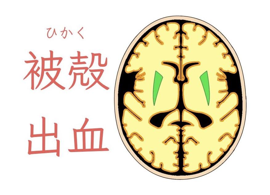 脳出血の種類はいろいろある!被殻出血の診断と治療について解説!