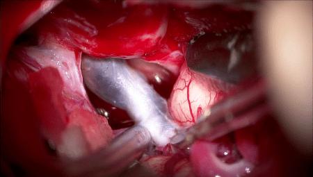 脳梗塞、手術、embolectomy