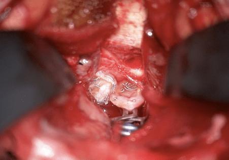 脳動脈瘤、コイル