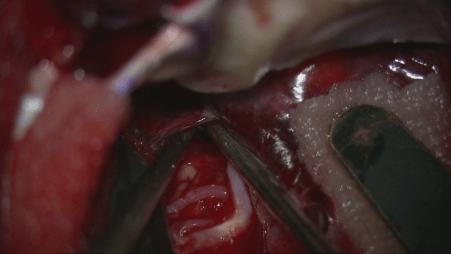 くも膜下出血、クリッピング術