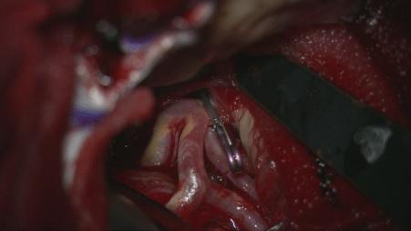 くも膜下出血、脳動脈瘤、クリッピング術