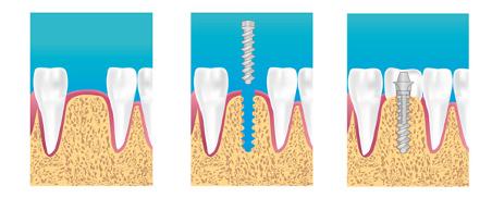 étapes de la pose d'implant dentaire à la couronne dentaire eric crichton cabinet implantologie le vesinet yvelines paris