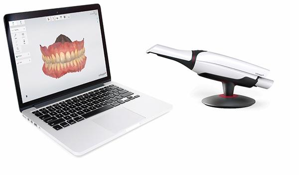 Digitaler Zahnscanner