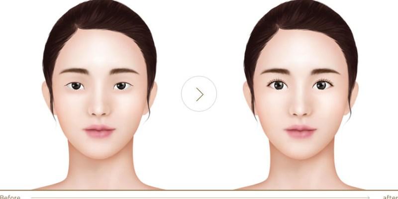 雙眼皮手術後眼睛是否會變大 ?