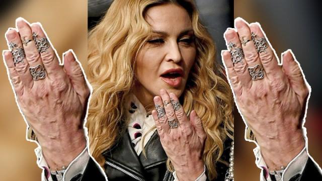 自體脂肪移植讓您雞爪手變奶油手!