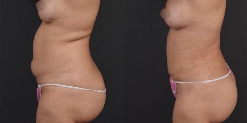 【持續更新!】威塑腹部抽脂案例