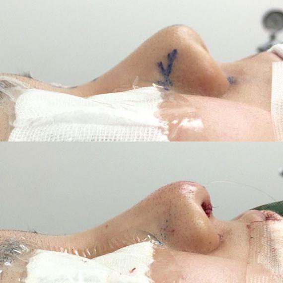 ぶた鼻修正で整った鼻になりました。鼻中隔延長術+プロテーゼの術直後になります。上を向いていた鼻のピークを変えてバランスを整えました!眼瞼下垂から若返り、小顔整形、脂肪吸引、豊胸まで ビフォーアフター写真を交えて解説しています。 http://s.ameblo.jp/sbc-nagura/entry-12167343676.html #湘南美容外科#町田院#名倉俊輔#美容外科専門医#小顔専門#日本美容外科学会認定美容外科専門医#バッカルファット#二重#小顔#脂肪吸引#小顔整形#クマ#クマ治療#美脚#美容整形#綺麗は作れる#カイトサーフィン#鼻#鼻中隔