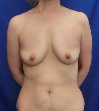 中等度乳房下垂の方の脂肪注入豊胸のビフォーアフター