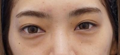 目の下のクマ、たるみ治療『経結膜脂肪移動術(裏ハムラ)』ビフォーアフター