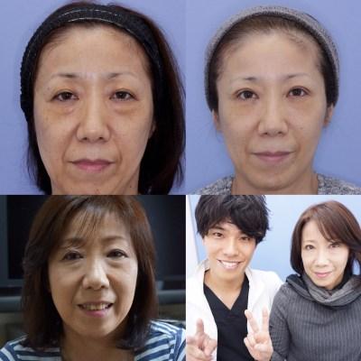 美容外科医名倉俊輔が実の母親の若返り手術をしました(その2)3ヶ月後