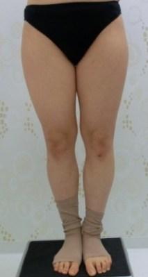 下半身の脂肪吸引のビフォー・アフター