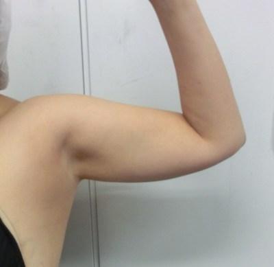 華奢な二の腕 を手に入れる二の腕の脂肪吸引