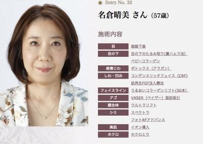 美容外科医名倉俊輔が実の母親の若返り手術をしました ビフォー・アフター