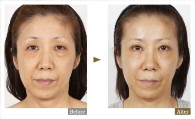 美容外科医名倉俊輔が実の母親の若返り手術をしました(その1)思い