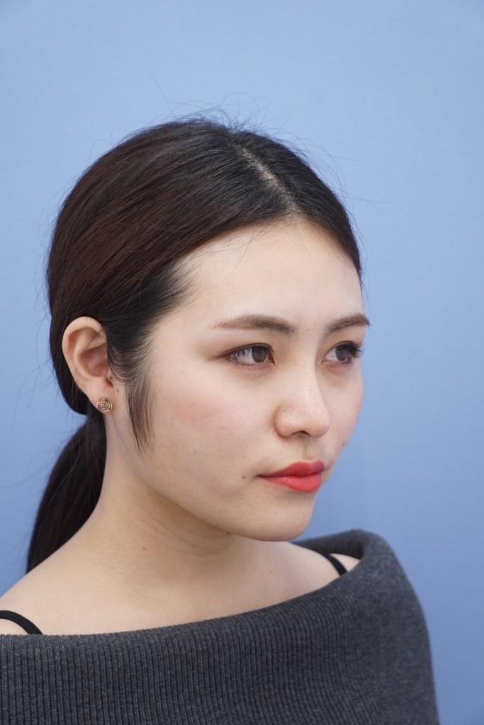 バッカルファット 名医 名倉俊輔 名倉 医師 湘南美容外科 美容外科医 小顔 脂肪吸引 顔の脂肪吸引 効果 ビフォーアフター エラ