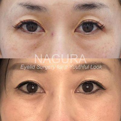 #バッカルファット #小顔 #目の下のクマ #二重 #整形 美容外科医 名倉俊輔インスタグラムから。詳しい解説はブログからどうぞ→