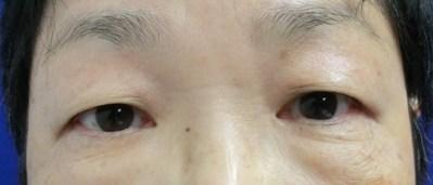 目周りの若返り!眉下切開のキモ!!① 傷跡を消す!