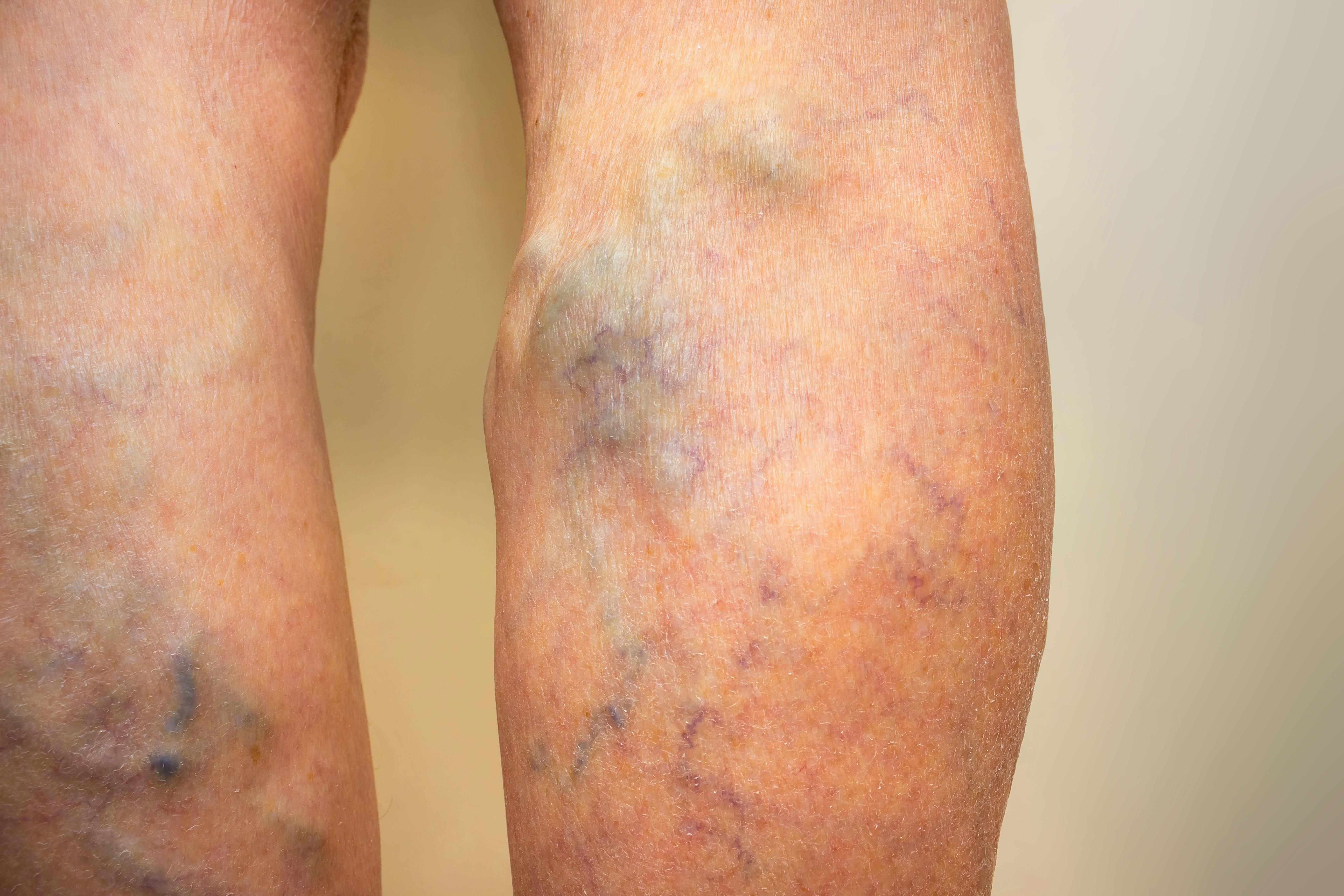 Phlebologie Venenerkrankungen Allergologe Und Hautarzt