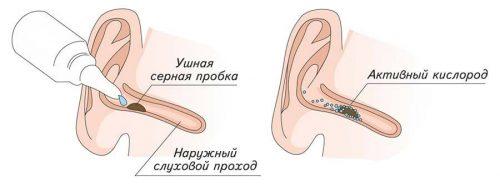 Использование специальных капель для удаления серных пробок в ухе