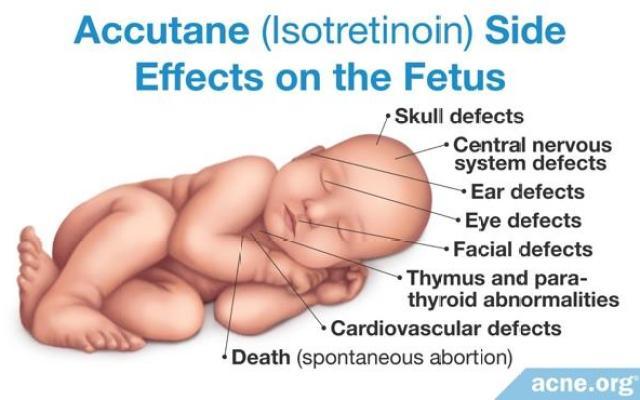 懷孕時絕對不可以吃口服A酸,這是人命關天的大事情,因為小孩可能會有畸胎性,這是青春痘治療的一個禁忌。