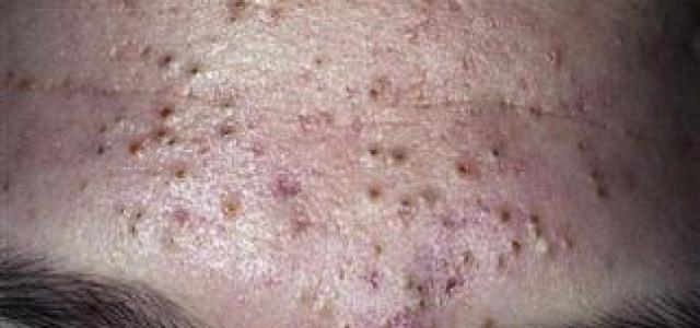 油性肌膚要怎麼選擇保養品?青春痘治療的最佳方法是吃藥與擦藥!但是選擇正確的保養品,也是治療的關鍵之一