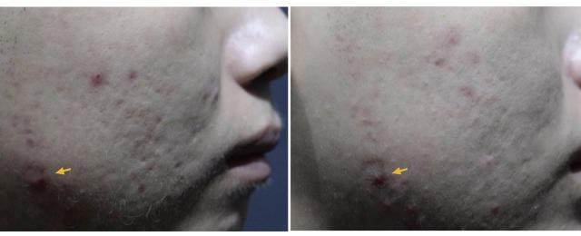 早期的痘疤治療很重要,痘疤越早治療恢復越好!當痘疤成熟時,治療的效果會大打折扣,要治療痘疤找莊醫師。