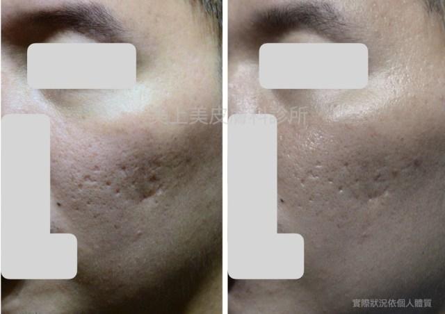 痘疤的型態有很多種!不同的痘疤就是要用不同的痘疤治療方式,要做痘疤治療絕對不是單一療程就可以看到效果