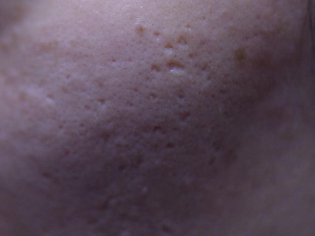 淺層的痘疤治療哪種方式最有效?磨皮雷射效果最好但副作用大!皮秒雷射是莊醫師的首選,因為效果好沒副作用