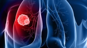 1377113609_Getty_111811_LungCancerRendering