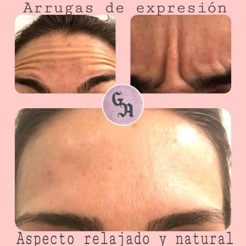 tratamiento arrugas botox zaragoza