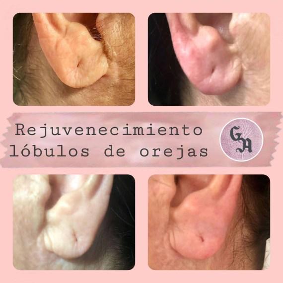 resultados lobulo oreja con hialuronico
