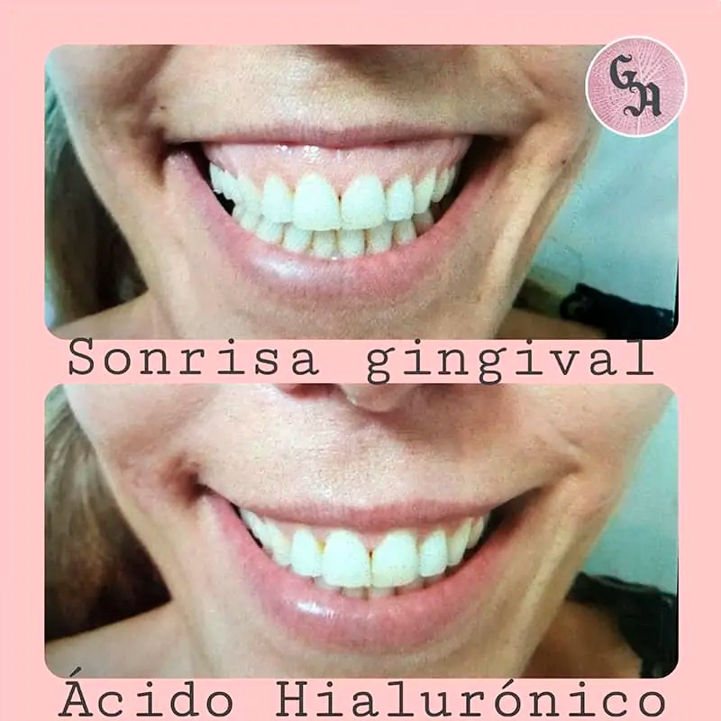 resultados sonrisa gingival, antes y despues, medicina estetica zaragoza, casos reales, exceso encia al sonreir
