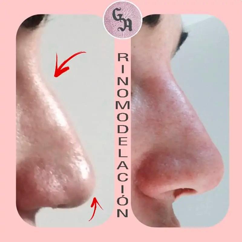 resultados rinomodelacion, antes y después, zaragoza, disimular hueso nariz,
