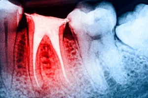 DO YOU NEED ROOT CANAL THERAPY?