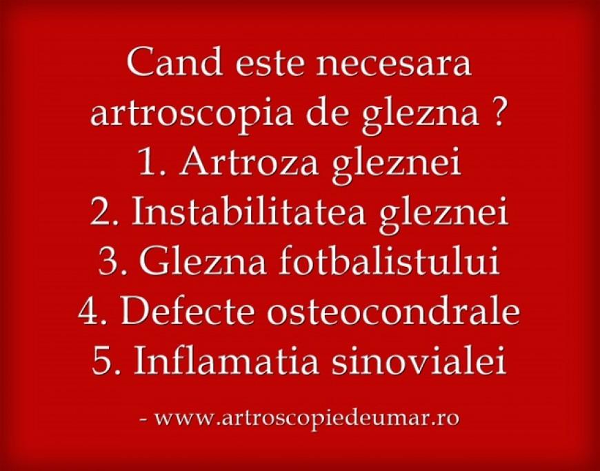 artroscopie de glezna 2