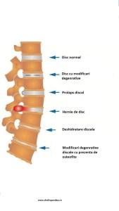 Hernia de disc