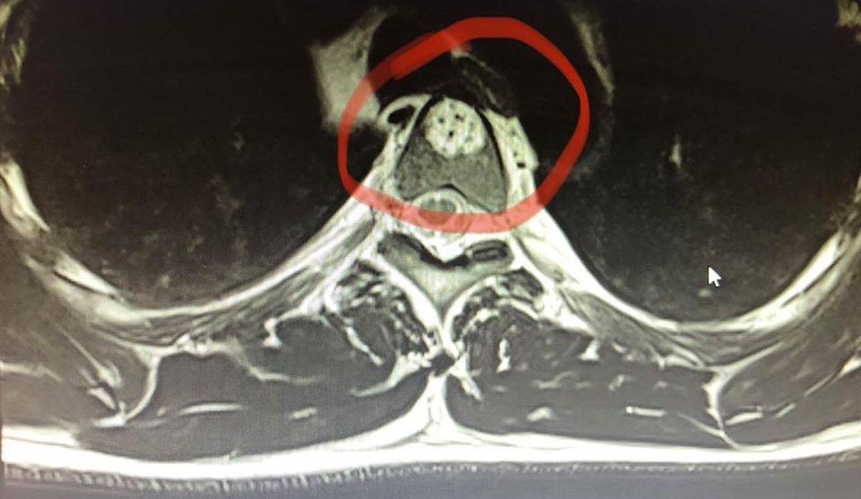 Cel Mai frecvent folositi termeni medical instruments-nu raport medical de examinare rmn coloana