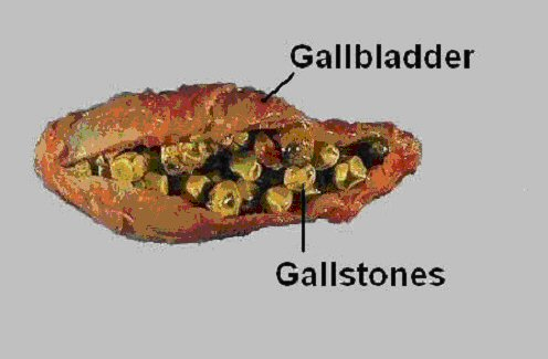 This is a gallbladder with some serious stones - you don't want to get one of those stuck in your ducts anywhere.