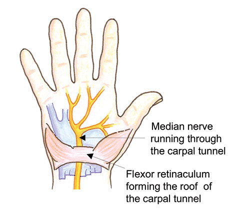 Carpal Tunnel Release Image