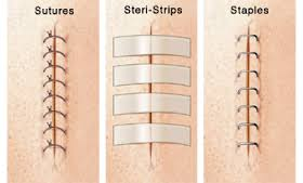 Different types of Sutures and Stitches Diagram