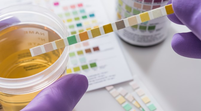 Glicosúria: açúcar na urina