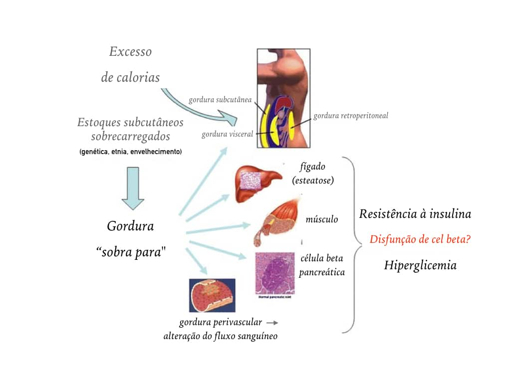 diabetes-e-gordura-ectopica
