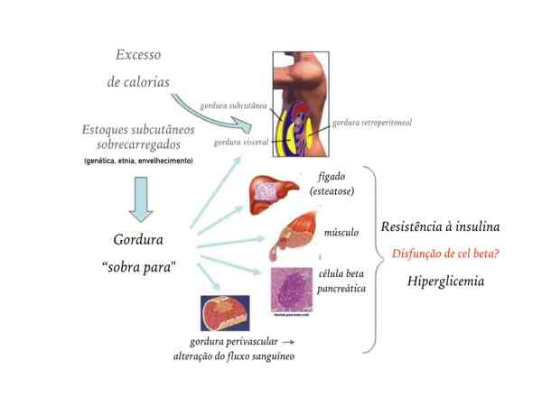 diabetes-e-gordura-ectopica