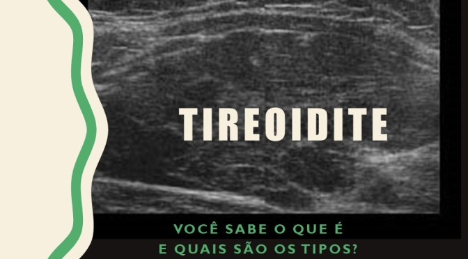 Tireoidites: diferentes tipos e tratamentos