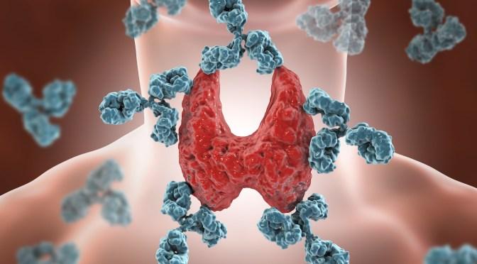 Tireoidite de Hashimoto, Doença de Graves e anticorpos contra tireoide