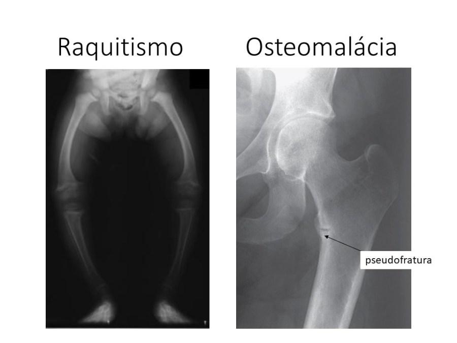 Achados radiológicos do raquitismo e osteomalãcia
