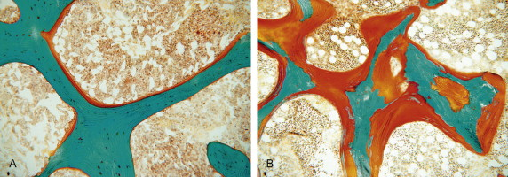 A. Osso normal com fina camada de matriz osteóide (em laraja). B. Osteomalácia com excesso de camada de matriz osteóide (osso não mineralizado)