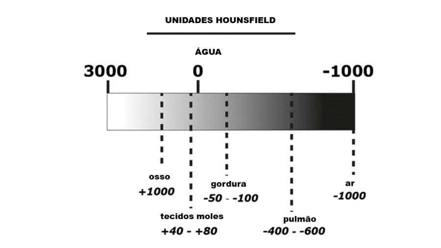 Escala de Unidades Hounsfield