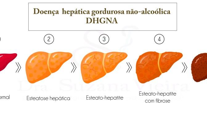 Doença Hepática Gordurosa não-alcoólica: atualizações