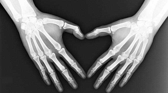 Paradoxo da calcificação: osso versus coração